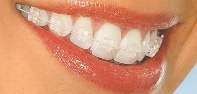 Orthodontie Dento-Faciale