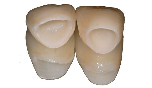 implant dentaire zircone 3