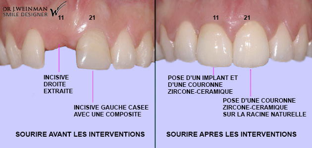 implant dentaire zircone